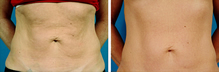 Thermage Body Before After