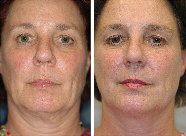 Dr watts age defying facial treatment removed (has
