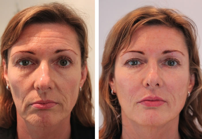 side effects of botox around the eyes
