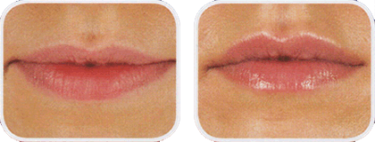 Lips by Dr Rakus