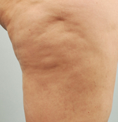 Cellulaze Anti-Cellulite Before Treatment
