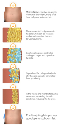 CoolSculpting Process