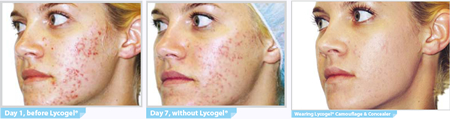 Lycogel Acne
