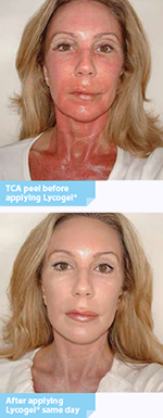 Lycogel Post Procedure Before and After