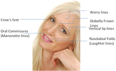 Areas of Application for PRP Skin Rejuvenation Therapy