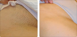 Soprano Pain Free Hair Removal