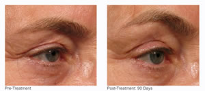 Ultherapy B efore and After
